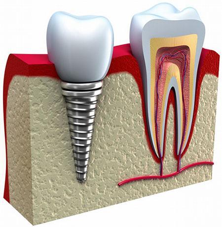 کلینیک تخصصی دندان پزشکی مرزداران ارتودنسی جرم گیری عصب کشی ایمپلنت
